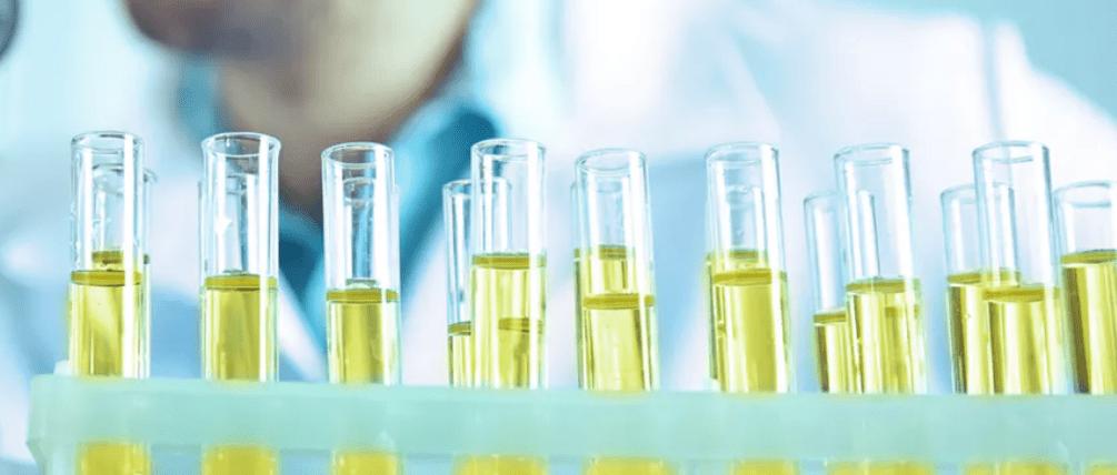Urology testing Forte Medical